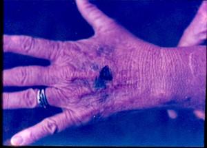 Ожоги на руке Вики Ландрам