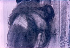 Выпадающие волосы на голове Бетти Кэш