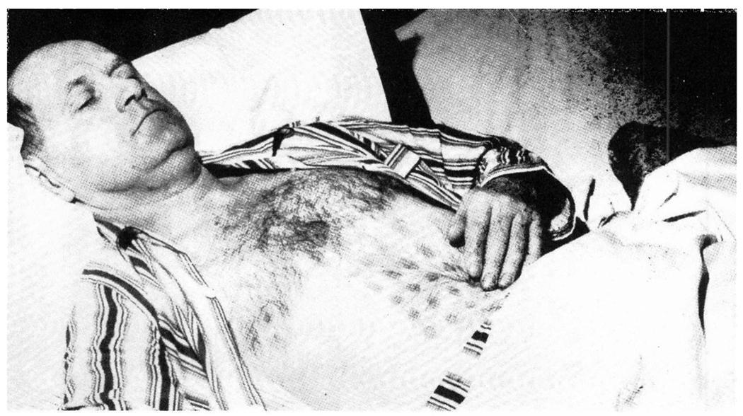 Стефан Михалак в больнице